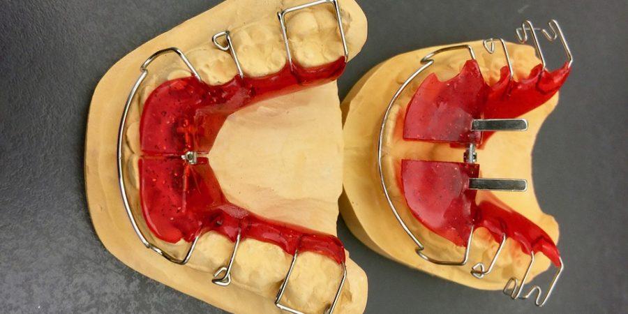 traitement orthodontique